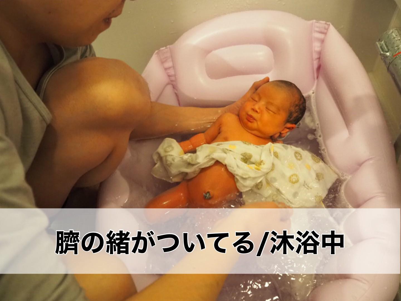 臍の緒のついている赤ちゃんの写真